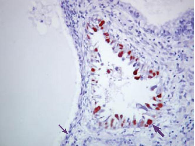 Detekci a Ki- 67 (červenohnedo) v SC (hrubá šípka). Neprítomnosť expresie Ki-67 v cystickom AE (v menopauze) (tenká šípka). Imunohistochemické vyšetrenie s protilátkou proti Ki-67. ABC- Px, 200×.