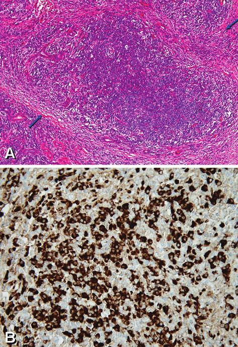 Chronická sklerozující sialoadenitida: (A) Intenzivní lymfoplazmocelulární zánětlivý infiltrát ve tkáni submandibulární žlázy, destrukce sekretorické komponenty (aciny, tubuly), rezidua intralobulárních vývodů vlevo a ložiska fibrózy ve formě vazivových pruhů (HE, zvětšeno 100 - šipky). (B) Pozitivní imunochemický průkaz IgG4 ve formě hnědého zabarvení cytoplazmy plazmatických buněk; nezbarvené buňky jsou lymfocyty (zvětšeno 400).