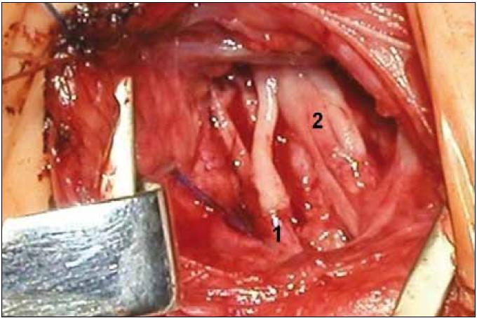 1 – Rekonstrukce fasciculus lateralis a částečně i posterior navazujících na C5–6 z kořene C4 (bez štěpu, kořen přeťat pod odstupem n. phrenicus. 1, 2 – fasc. medialis a zbytku fasc. posterior navazujících na kořeny C6–Th1 pomocí čtyř štěpů (2,5 cm) z kořene C5. Klinický výsledek obr. 12.