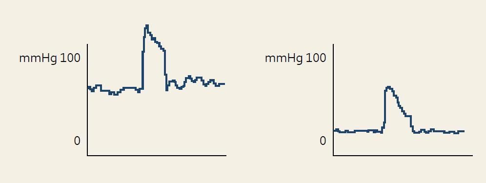 Rozdíl manometrického záznamu análního tlaku při testu sevření u zdravého pacienta (vlevo) a pacienta s inkontinencí stolice (vpravo). Fig. 1. Difference of anorectal manometry record, squeeze pressure in healthy patient (left) and pacient with fecal incontinence (right).
