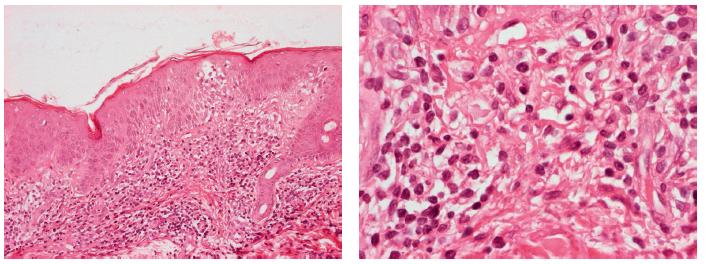 a 2. Histologické vyšetření – bioptický vzorek ze sakrální oblasti pacienta