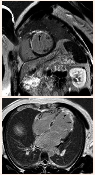 Vyšetrenie srdca zobrazením magnetickou rezonanciou. Krátka a dlhá os s opacifikáciou hrotu a prednej steny ĽK po podaní gadolínia – transmurálna jazva (označené šípkami)