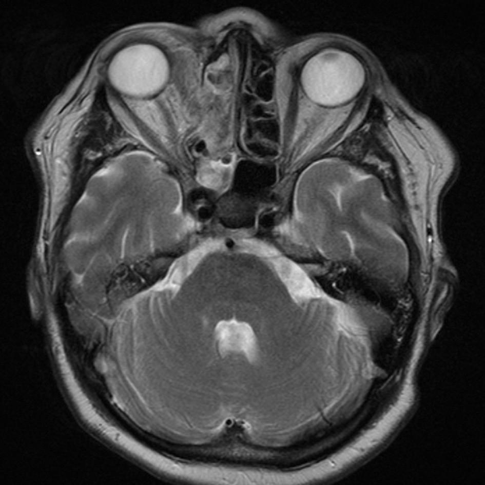 MR, axiální řez, 1. pooperační den – tumor je kompletně odstraněn