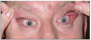Asymetrický FES (více na levé straně) u pacienta s OSA, který spí v noci většinou na levém boku