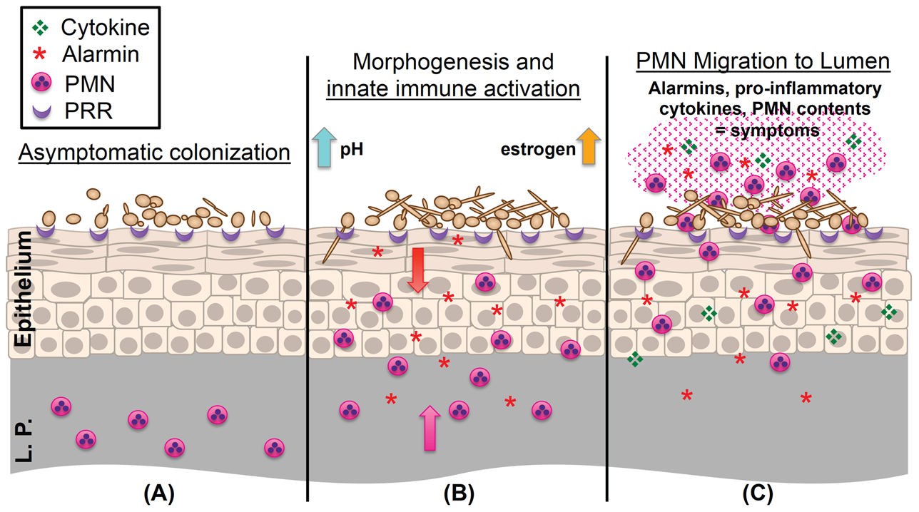 Working model of the immunopathogenesis of <i>C. albicans</i> vaginitis.