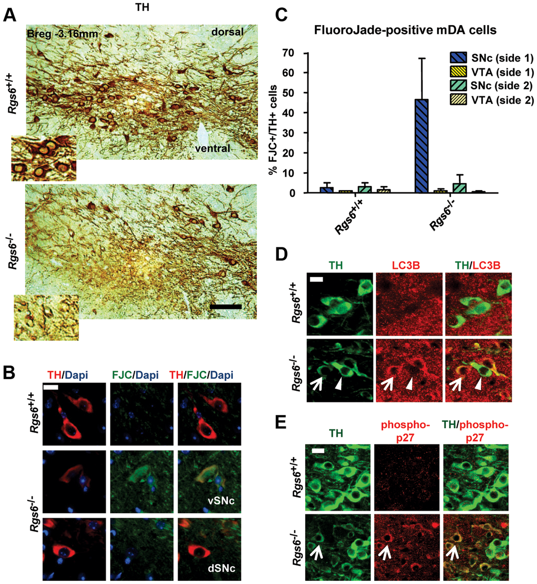 Unilateral degeneration of vSNc neurons in a subset of <i>Rgs6−/−</i> mice.