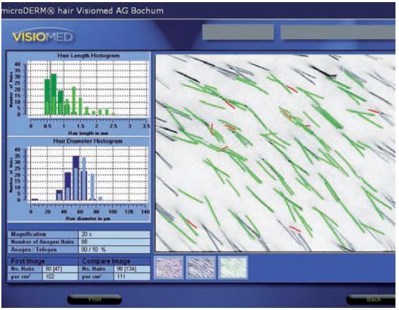 Grafické vyhodnocení digitálního fototrichogramu (anageny jsou znázorněny zeleně, telogeny červeně)