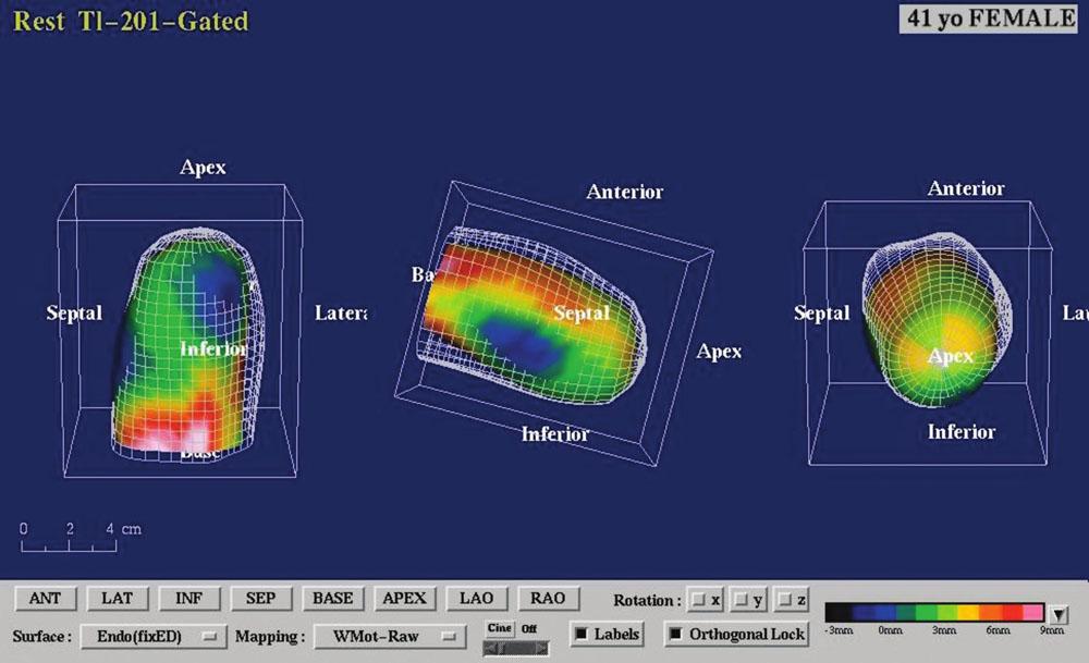 Gated SPECT 3D. Znázornění endokardiálního povrchu levé komory v end-diastole a end-systole s patrnou difuzní hypokinézou a akinézou hrotu (obrazová dokumentace SPECTu myokardu s popisem – doc. MUDr. M. Kamínek, Ph.D., Klinika nukleární medicíny, FN Olomouc).