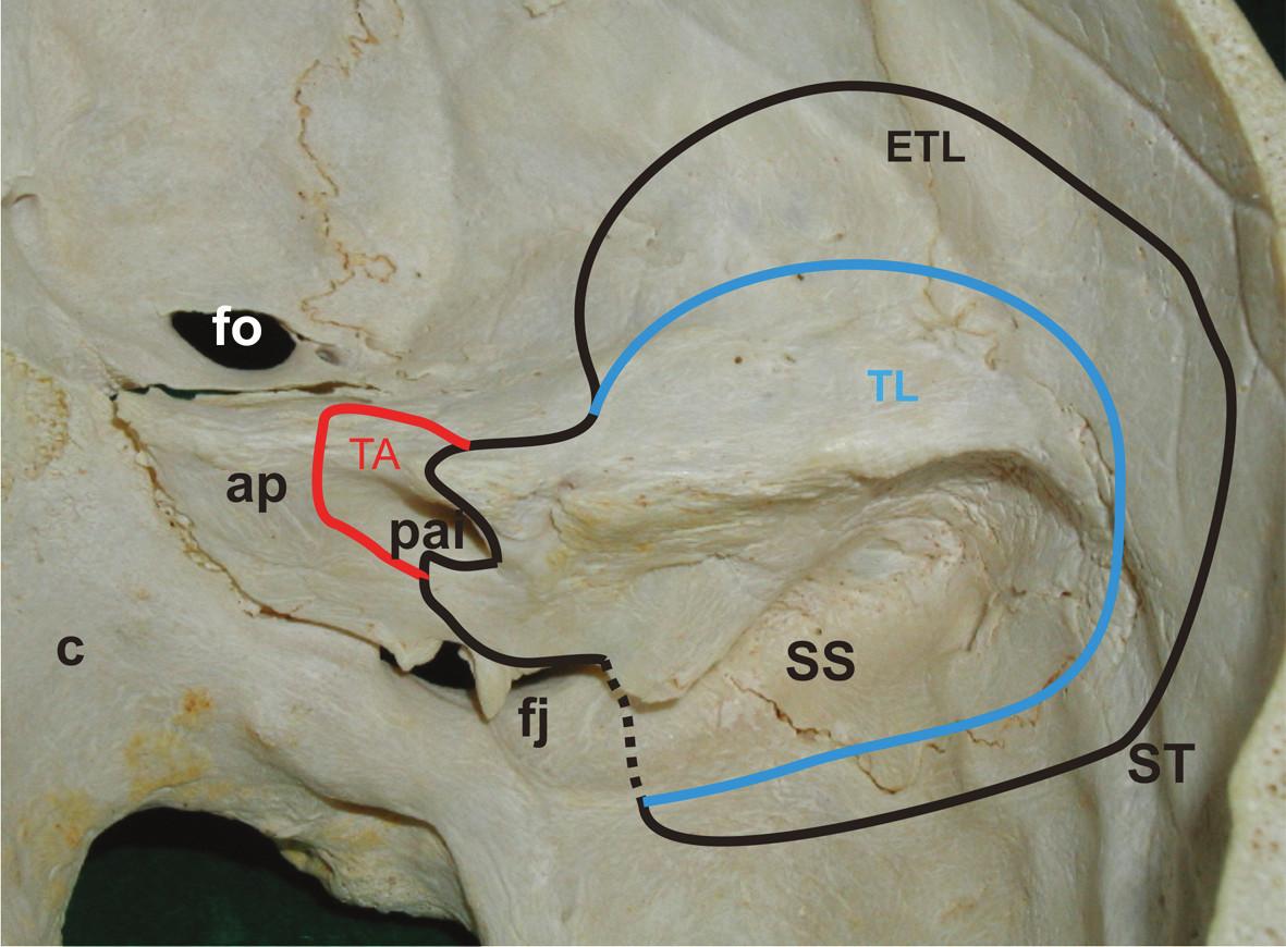 Lebka – pravá strana. Pohľad do vnútra na spánkovú kosť a jej sutúry z okcipitálnou kosťou a sfenoidálnou kosťou.