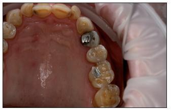 Vážné erozivní defekty na zubech horní čelisti