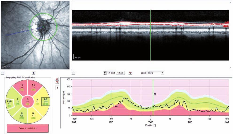 OCT RNFL (OCT Spectralis) pravé oko (pacient č. 1). Pozitívny nález v hornej časti, v nazálnej časti hraničný nález.