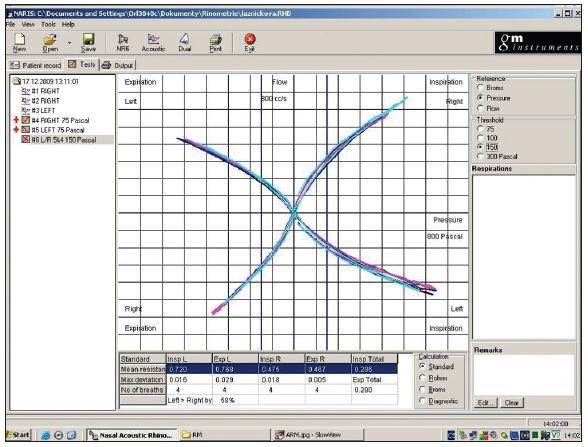 Rinomanometrická křivka v softwarovém prostředí.