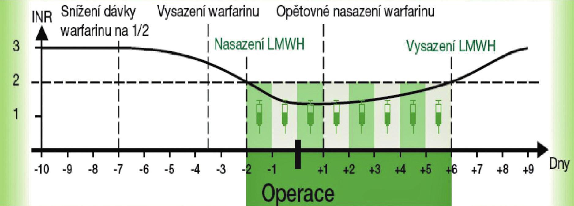 Převedení nemocného z warfarinu na LMWH a zpět v případě elektivního výkonu