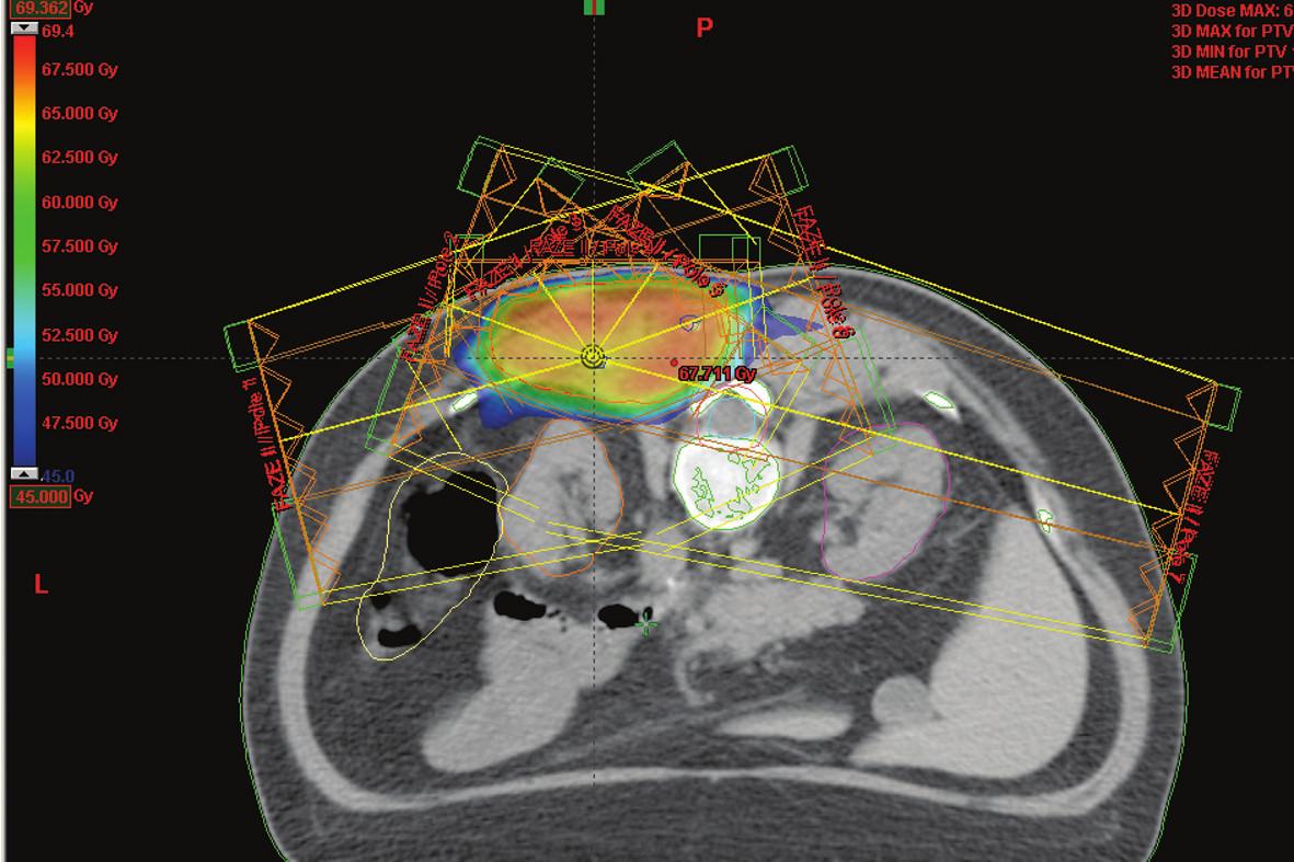 IMRT technika na oblast lůžka sarkomu umístěného v těsné blízkosti míchy a ledvin – barevně je označena izodóza označující oblast 45 Gy (toleranční dávka míchy) Fig. 2. IMRT technique at the sarcoma bed located close to the spinal cord and kidneys– the isodose marking the 45 Gy region (the spinal cord tolerance dose) is highlighted in colour