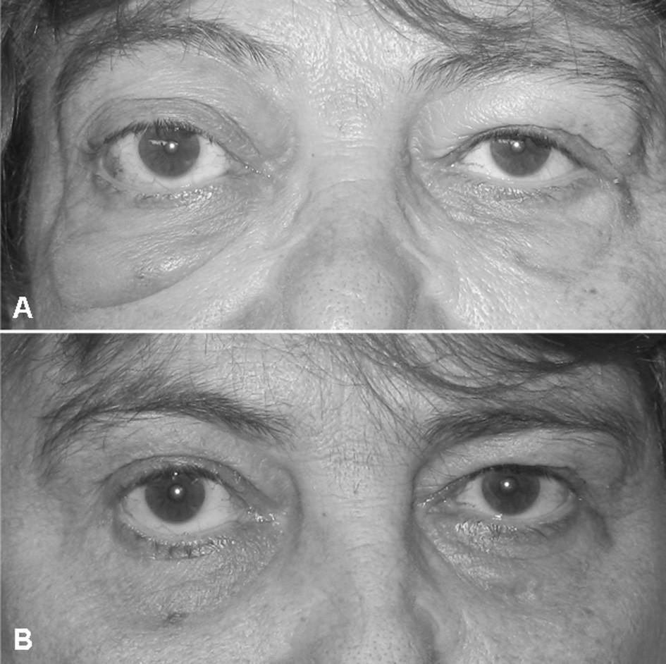 Klinický obraz očních změn: (A) Pravostranný exoftalmus (Hertelův test s rozdílem obou očí 10/100 mm) a zduření pod pravým okem před startem terapie a (B) kontrola za tři měsíce (Hertelův test se stejným nálezem u obou očí).