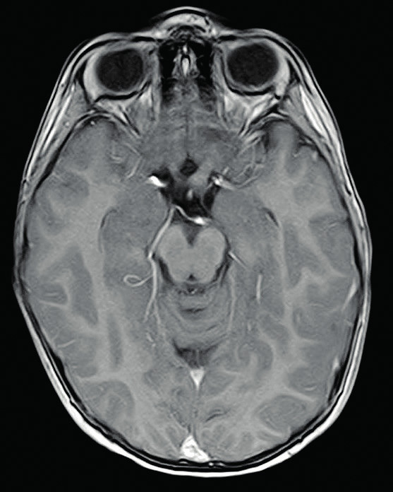 Gliom levého optického nervu, T1 postkontrastní zobrazení 