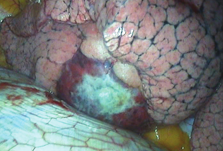 Peroperačný nález pneumatokély v dolnom laloku pravých pľúc Fig. 3: Perioperative finding of pneumatocele in the lower lobe of the right lung