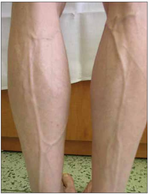 Lipoatrofie – prominence povrchových žil na dolních končetinách.