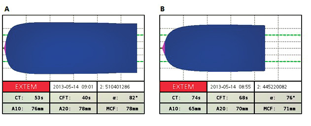 Obr. 4a, b Hodnoty nameraných parametrov sú v norme až hyperkoagulačné napriek laboratórnej koagulopatii CT (clotting time, ako R pri TEG) s normálným rozmedzím 38–79 s; CFT (clot formation time, ako K pri TEG) s normálným rozmedzím 34–159 s); ahol alfa s normálným rozmedzím 63–83 s; MCF (maximum clot formation, ako MA pri TEG) s normálným rozmedzím 50–71 s.
