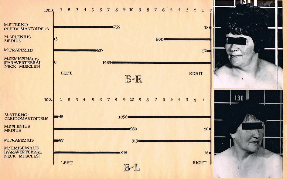 Obr. 1 Cervikální dystonie rotační doleva těžkého stupně. Klidový záznam. Převažuje aktivita m. semispinalis vlevo (8. řádek), inaktivní jsou m. semispinalis vpravo a kývač vlevo (4. a 5. řádek).