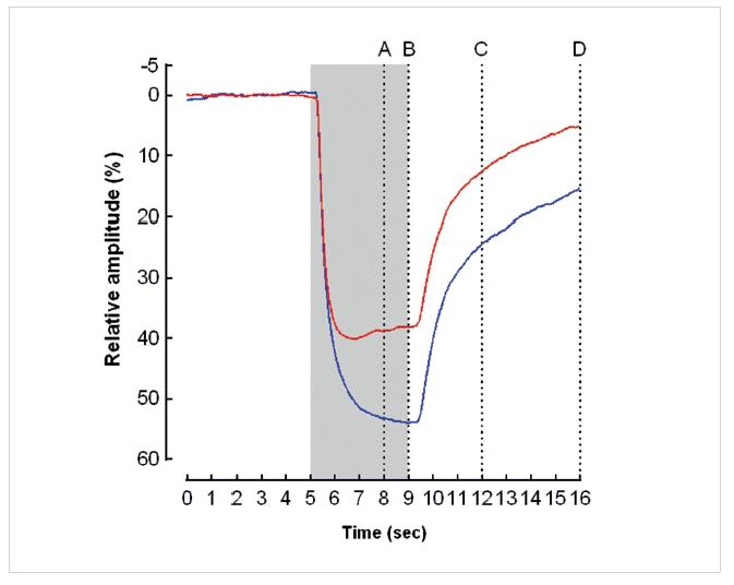 """Průměrná relativní amplituda pupilární reakce (osa y) na červený (horní křivka) a modrý stimulus (dolní křivka) u zdravých osob. Šedý sloupec znázorňuje trvání světelného stimulu. Vertikálami jsou vyznačeny body, ve kterých byla stanovena relativní pupilární amplituda, definovaná jako podíl průměru zornice v daný okamžik a jejího výchozího průměru. A – relativní amplituda 3 s po zapnutí stimulu, B – relativní amplituda při vypnutí stimulu, C – relativní amplituda 3 s po vypnutí stimulu, D – relativní amplituda 7 s po vypnutí stimulu. Při osvitu zornice modrým světlem byla relativní amplituda v každém měřeném okamžiku významně větší a latence do maximálního zúžení zornice významně delší než při působení červeného světla. Při působení modrého světla převažovala prodloužená (""""sustained"""") kontrakce zornice, zatímco při působení červeného světla přechodná (""""transient"""")  kontrakce zornice"""