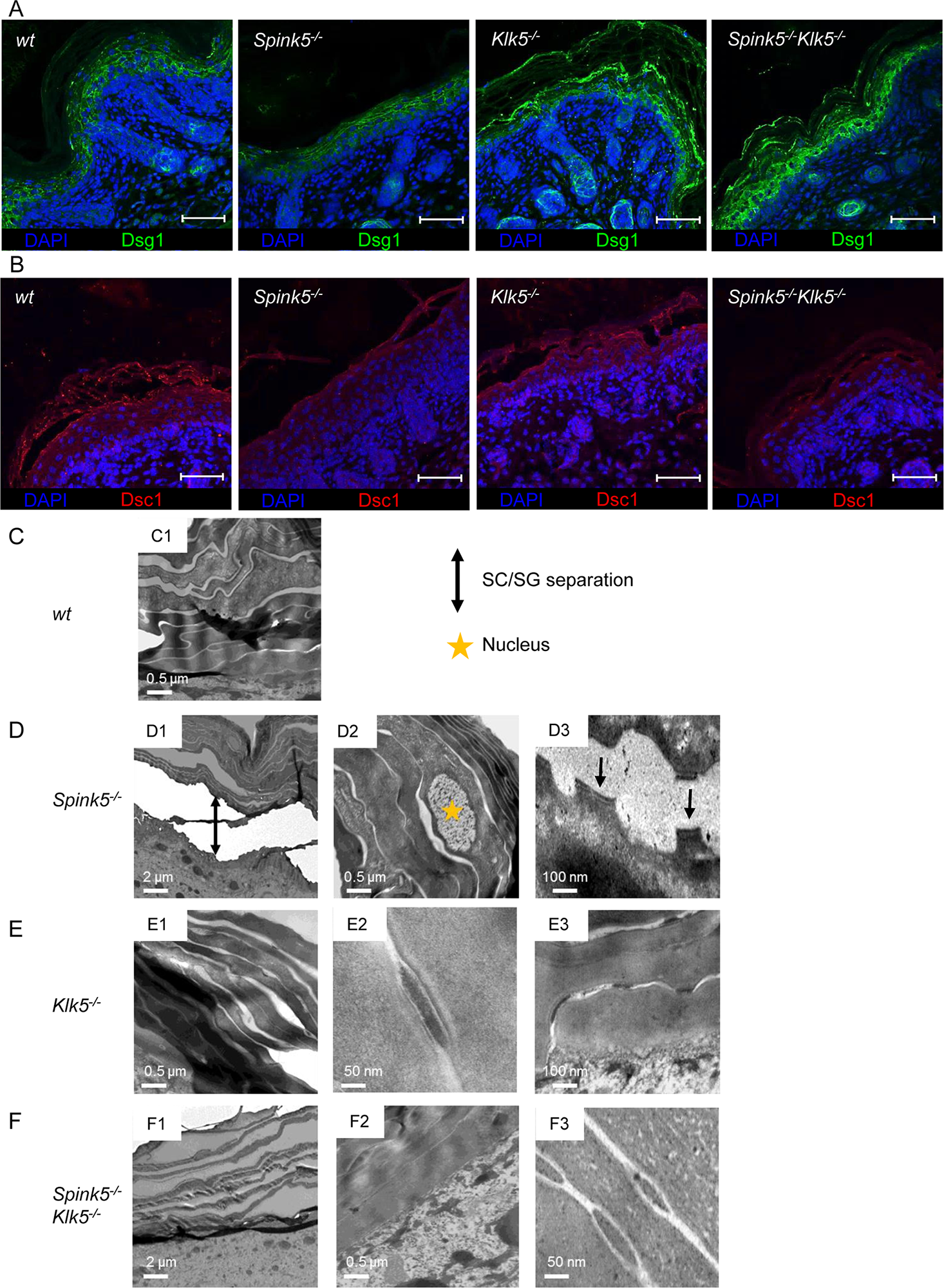 The ultrastructural architecture of <i>Spink5</i><sup><i>-/-</i></sup> epidermis is normalized by <i>Klk5</i> knockout.