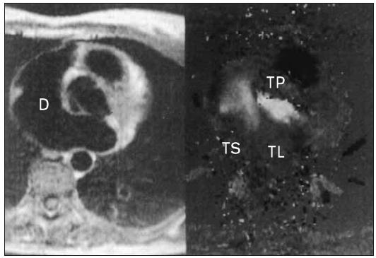 MRI defektu septa síní. Levý panel spin echa v transaxiální rovině ukazuje defekt (D). Pravý panel ukazuje v téže rovině rychlostní mapu, která jasně zobrazuje tok defektem.