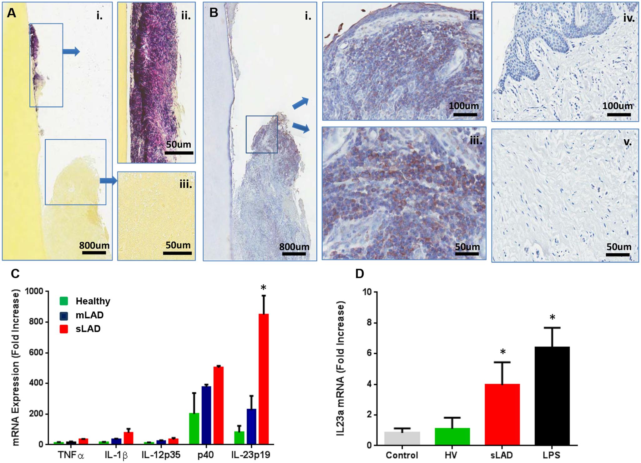 Immunostimulatory potential of LAD- associated dental plaque.