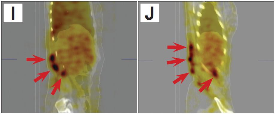 SPECT/CT obrazy trupu umožní přesnější posouzení lokalizace a rozsahu hemangiomu (šipky). A 3D obraz v předním pohledu B 3D obraz v pravém bočním pohledu C 3D obraz v pravém zadním šikmém pohledu D řez v transverzální rovině v dolní části hrudníku E řez v transverzální rovině v úrovni beder F řez v transverzální rovině v úrovni pánve G řez ve frontální rovině dorzálně v oblasti páteře H řez ve frontální rovině dorzálně v oblasti zadní stěny trupu I řez v sagitální rovině parasagitálně od střední čáry vpravo J řez v sagitální rovině laterálně vpravo