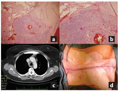 a,b,c,d: a) Definitivní histologie v barvení hematoxylinem-eosinem zobrazující metastázu renálního papilárního karcinomu (zvětšení 40x); b) Hematoxylin-eosin (zvětšení 100x); c) Kontrolní snímek půl roku po provedené náhradě zobrazující náhradu sterna; d) Sutura kůže po resekci sterna. Fig. 6 a,b,c,d: a) Definitive histology of renal papilary carcinoma metastasis stained with hematoxylin-eosin (40x zoomed); b) Hematoxylin- eosin (100x zoomed); c) Follow-up CT image taken 6 months after resecion showing the sternal replacement; d) Final skin suture after resection .