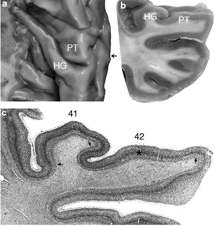 Heschlův závit a planum temporale (17) A Pohled na Heschlův závit (HG) a planum temporale (PT) shora B Pohled v čelním řezu C Cytoarchitektonika v čelním řezu 41 = BA41 42 = BA42