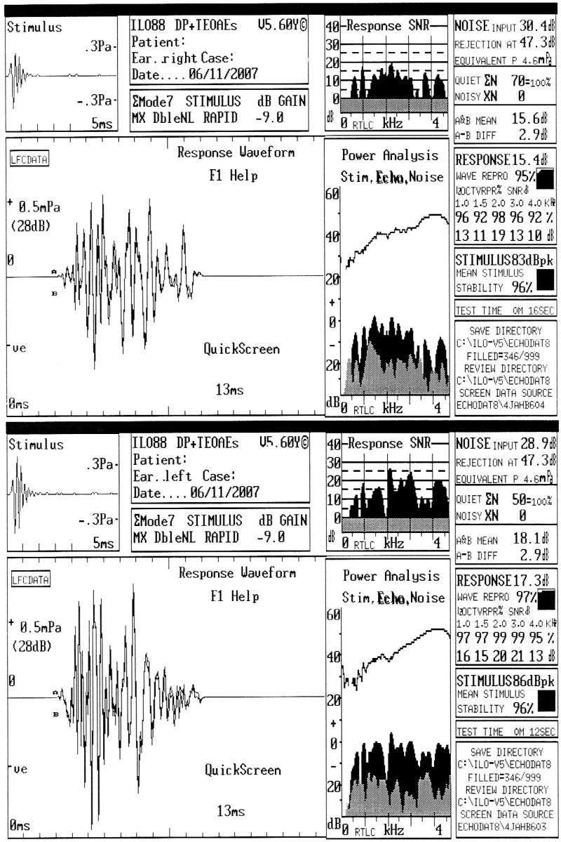 Tranzitorní efekt otoakustické emise u AN.