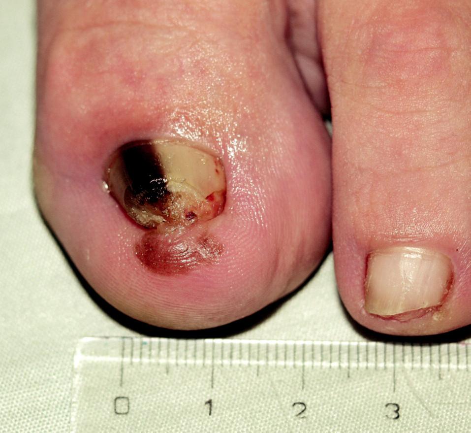 Akrolentiginózní melanoma in situ, Hutchinsonovo znamení.