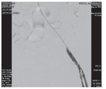 Umiestnenie katétra pre mechanickú trombektómiu AIE l.sin. Fig. 4: Catheter placement for mechanical thrombectomy AIE l.sin.