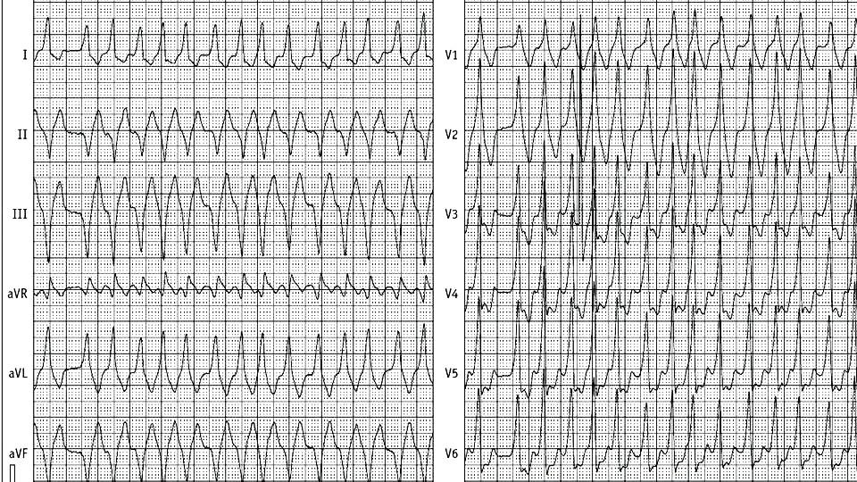 Fibrilace síní a WPW syndrom