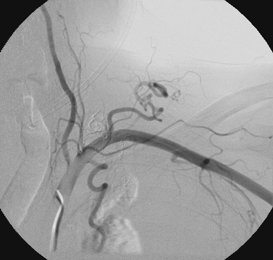 Obr. 3. Angiogram arteria subclavia sinistra před embolizací (A), na kterém se opacifikuje dutina falešné výdutě. Superselektivní angiogram koaxiálně zavedeným mikrokatétrem(B). Kontrolní nástřik levé podklíčkové tepny po embolizaci(C)  Fig. 3. Angiogram of the left subclavian artery, performed prior to embolization (A), with the pseudo-aneurysm sac opacity. A superselective angiographic view with coaxial introduction of a microcatheter (B). Postembolization control contrast injection into the left subclavian artery (C)