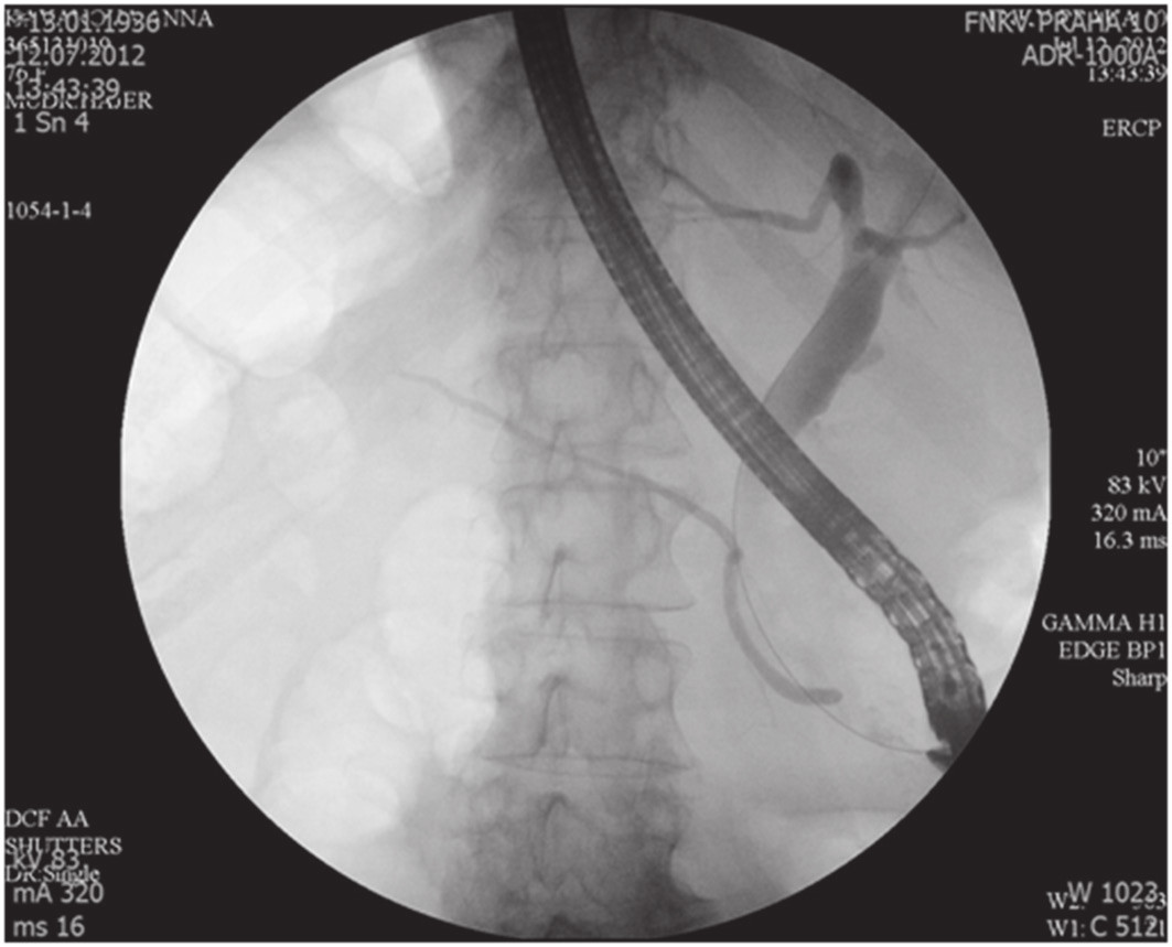 ERCP nález, normální Wirsung, dilatace HCH Fig. 1. Normal ERCP finding, normal Wirsung duct, CBD dilatation