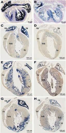Obr. Exprese ANP a BNP u myších embryí a u dospělých myší a při myokardiálních onemocněních (převzato z [21] se souhlasem Elsevier)