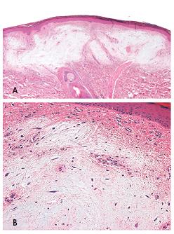 Kožní myxomy jsou dobře ohraničené, neopouzdřené, na buňky chudé léze (A, zvětšeni 40x), složené z roztroušených polygonálních, cípatých nebo vřetenitých buněk na hojném mucinózním pozadí s malými, lehce dilatovanými nebo štěrbinovitými cévami (B, zvětšeni 100x). Barveno hematoxylinem eozinem.