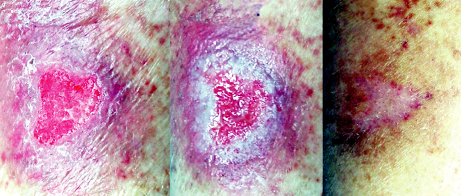 Fig. 1. Chronic wound of the leg: left before treatment, center 6 days after the application of the new gel, right 25 days after complete healing