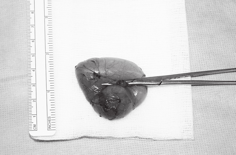 Cystický útvar s podvázanou píštělí. Fig. 3. The thyroglossal cyst with fistula.