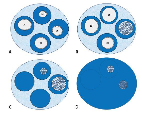 Schéma 4 A. MZBL MALT-typu, (obyčajne iniciálne) rast na spôsob okrajovej zóny.  B. MZBL: tzv. kolonizácia lymfatických folikulov, obraz imituje folikulový lymfóm.  C. MZBL MALT-typu, pokročilá kolonizácia lymfatických folikulov, obraz imituje folikulový lymfóm. D. MZBL MALT typu, splývanie ložísk infiltrácie a dojem difúzneho rastu.