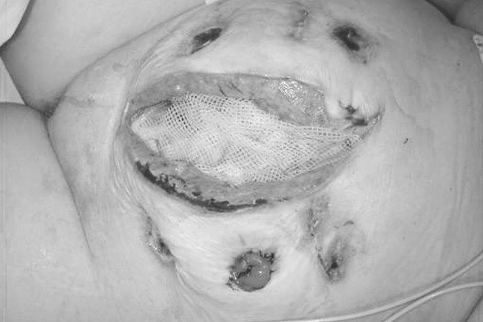 Uložení mastného tylu na spodinu