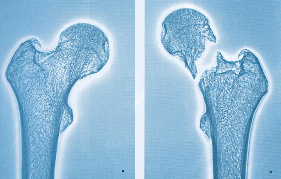 Obr. 3d Zlomenina krčku levé stehenní kosti (orig. E. Vlček).