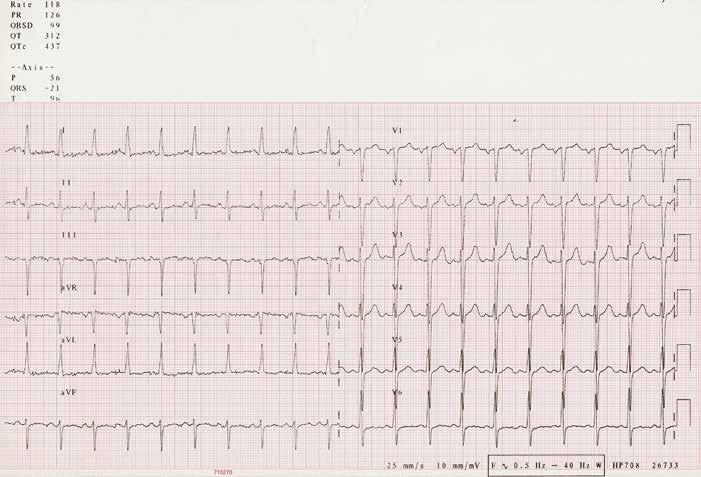 EKG při přijetí v roce 2006.