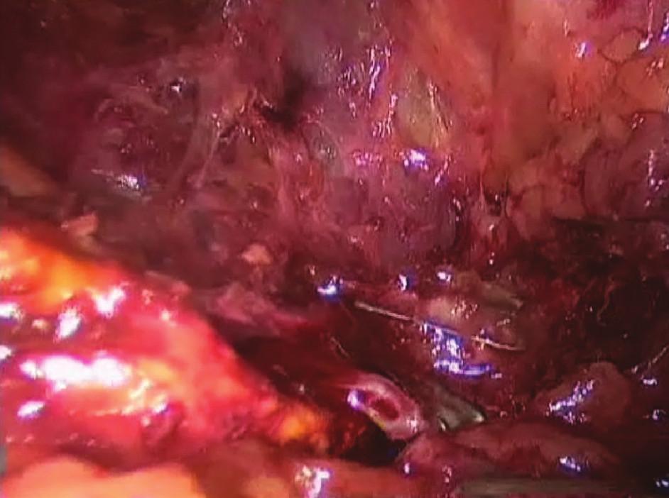 Přerušení v. suprarenalis po naložení klipů centrálně Fig. 3: Dissection of vena suprarenalis after the central clips placement