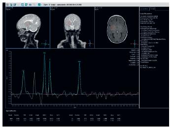MR spektroskopie: patologicky zvýšený peak 3.56 ppm. Fig. 5. MRI spectroscopy: pathologically high peak 3.56 ppm.