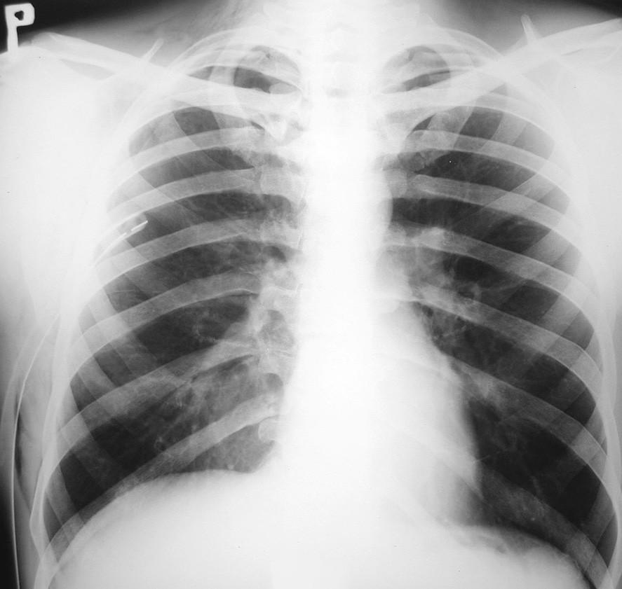 RTG hrudníka 5 dní po drenáži hrudníkovej dutiny, zobrazujúca ústup pľúcneho edému a pretrvávajúci PNO vpravo Fig. 4. Thoracic x-ray 5 days following drainage of the thoracic cavity, depicting resolving pulmonary edema and persisting pneumothorax on the right