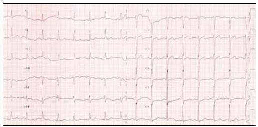 12svodové EKG před hyperventilačním testem.