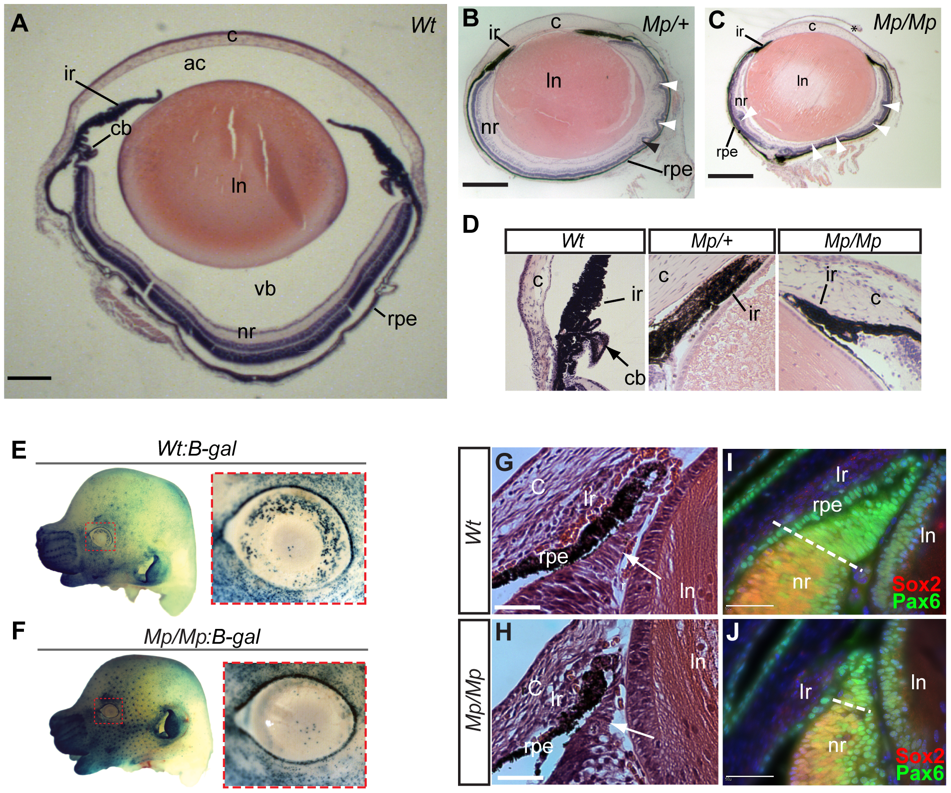 <i>Mp</i> eyes displayed structural defects and abnormal ciliary development.